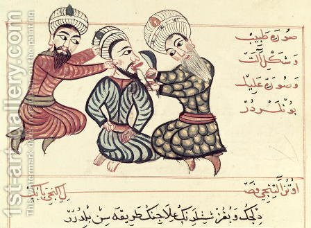 Charaf-ed-Din: Ms Sup Turc 693 fol.76v Excision of a ranula from under the tongue, 1466 - reproduction oil painting