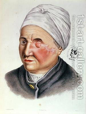 Illustration from Traite de Chirurgie Plastique by (after) Lackerbauer - Reproduction Oil Painting