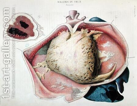 Pericarditis, plate depicting heart diseases from 'Anatomie pathologique du corps humain' by Antoine Chazal - Reproduction Oil Painting