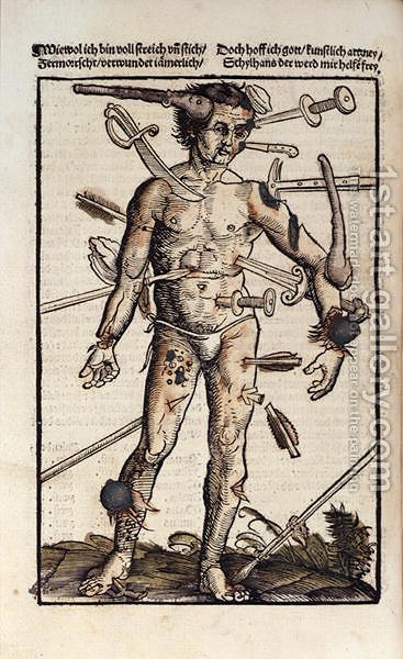 XVIIIv The Wound Man, from the Feldtbuch der Wundartzney by Hans von Gersdorff, 1517 by Hans or Johannes Ulrich Wechtlin - Reproduction Oil Painting