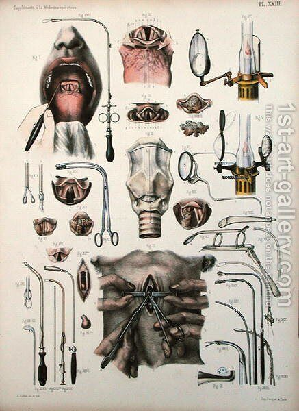Tracheotomy operation, plate from Traite Complet de lAnatomie de lHomme by Jean-Baptiste Marc Bourgery 1797-1849 1866-67 by E. Pochet - Reproduction Oil Painting