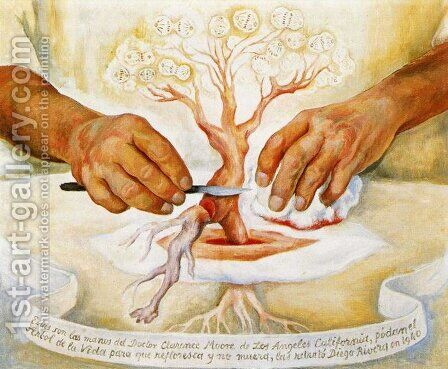 The Hands of Dr Moore (Los manos del Dr Moore) 1940 by Diego Rivera - Reproduction Oil Painting