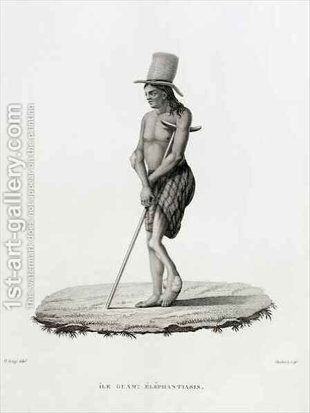 Guam: A Man with Elephantiasis, from 'Voyage Autour du Monde sur les Corvettes de L'Uranie 1817-20' by (after) Arago, Jacques Etienne Victor - Reproduction Oil Painting
